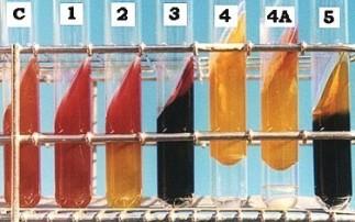 三糖铁琼脂试验原理及结果对照