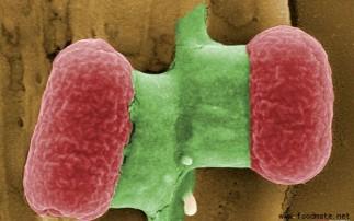 肠出血性大肠杆菌(EHEC)