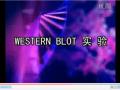 Western blot视频之五:转膜 (9播放)