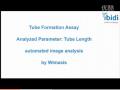 血管生成 Angiogenesis 自动分析软件 (18播放)