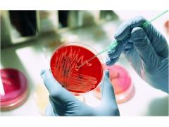 微生物测试服务-食品测试-检验报告