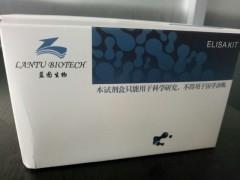 人性激素结合蛋白(SHBG)定量检测试剂盒(ELISA)