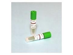 环氧乙烷指示剂_环氧乙烷灭菌生物指示剂