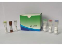 禽流感H5亚型实时荧光RT-PCR试剂盒(免提)供应